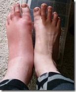 swollenfoot